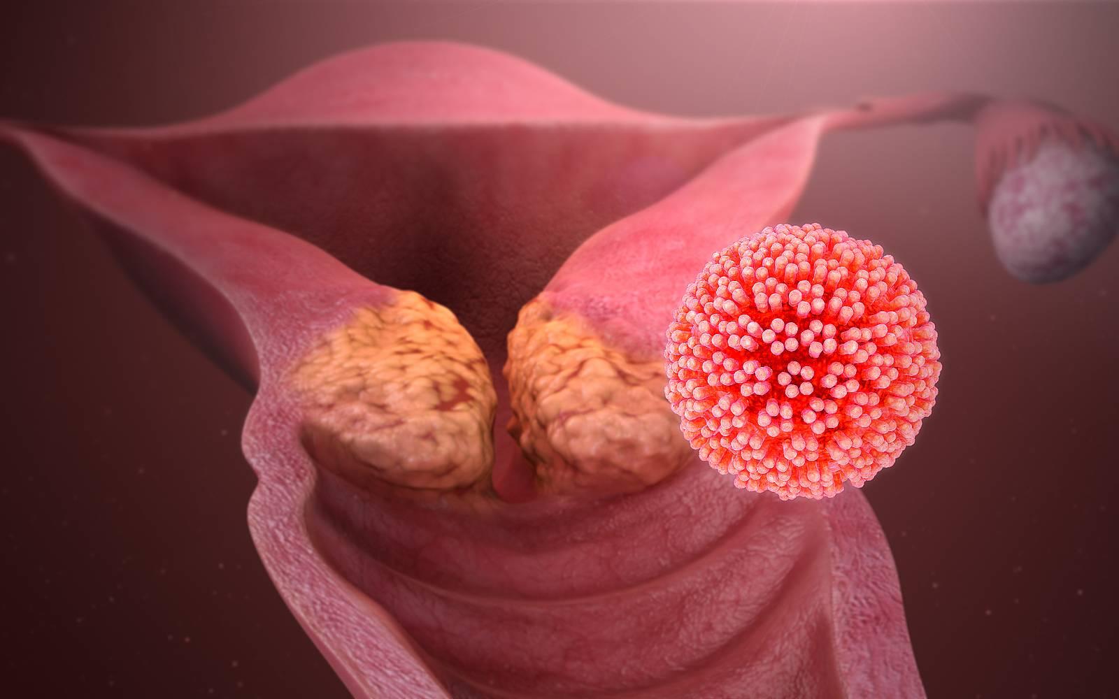 кондиломы и рак матки